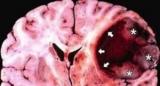 Нове речовина може допомогти в боротьбі зі смертельним раком мозку